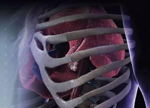 Физиотерапия после эндопротезирования тазобедренного сустава
