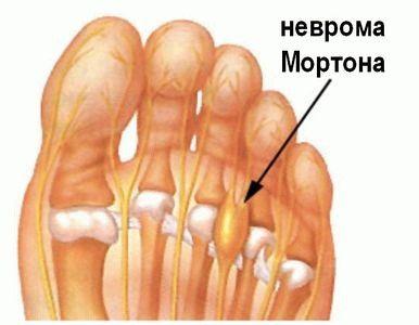 Воспалился палец на ноге что делать
