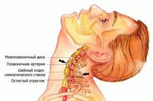 Опухла шея: припухлость в области шеи над ключицей, причины