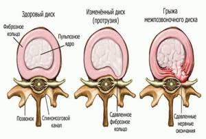 Дискогенная радикулопатия шейного отдела позвоночника