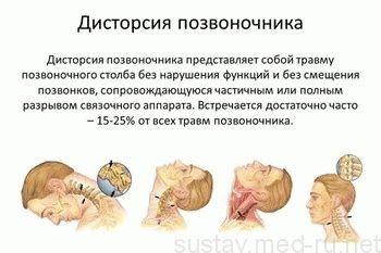 Вывих шеи: симптомы и лечение растяжения связок (фото). Как лечить растяжение или вывих шейного отдела у взрослых. Что нельзя делать при растяжении в области шеи