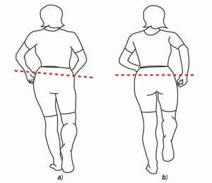 Нога короче другой после эндопротезирования тазобедренного сустава