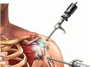 Артроскопия плечевого сустава восстановление после операции