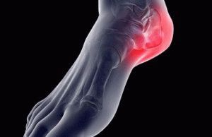 Артроз пяточной кости симптомы и лечение