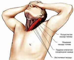 Растяжение мышц шейного отдела позвоночника