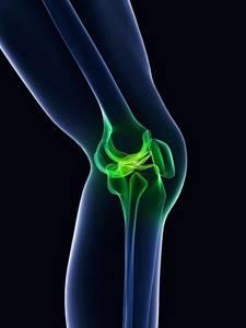 Гипертрофированная медиопателлярная складка коленного сустава