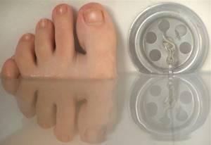 солевые ванночки для ног после перелома