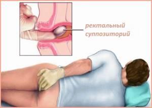 Свечи при остеохондрозе поясничного отдела позвоночника