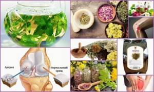 Яблочный уксус для лечения суставов артроза -