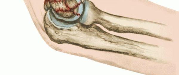 Перелом локтевой кости — лечение и срок срастания