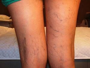 Тянет мышцы на ноге от колена до ягодицы причины