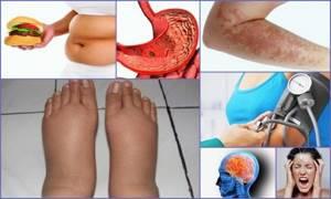 Тазобедренный сустав симптомы болезни лечение уколы таблетки