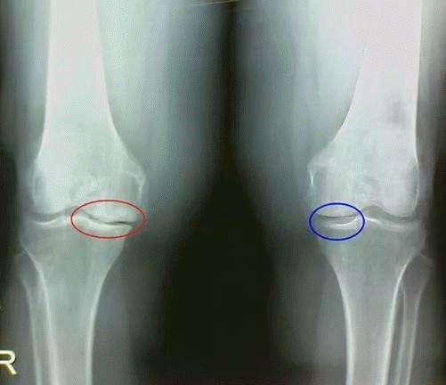 Можно ли восстановить хрящевую ткань тазобедренного сустава