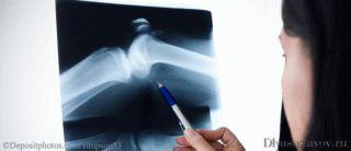 Разрушение хрящевой ткани суставов - Лечение Суставов