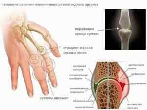 Пауциартикулярный юношеский артрит: симптомы и лечение