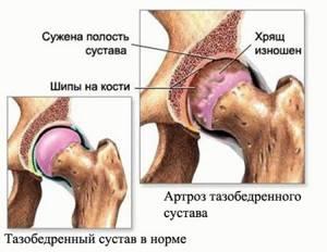 Замена тазобедренного сустава - реабилитация после операции в Москве в центре восстановления Юсуповской больницы