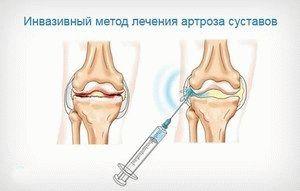 Протезы синовиальной жидкости коленного сустава